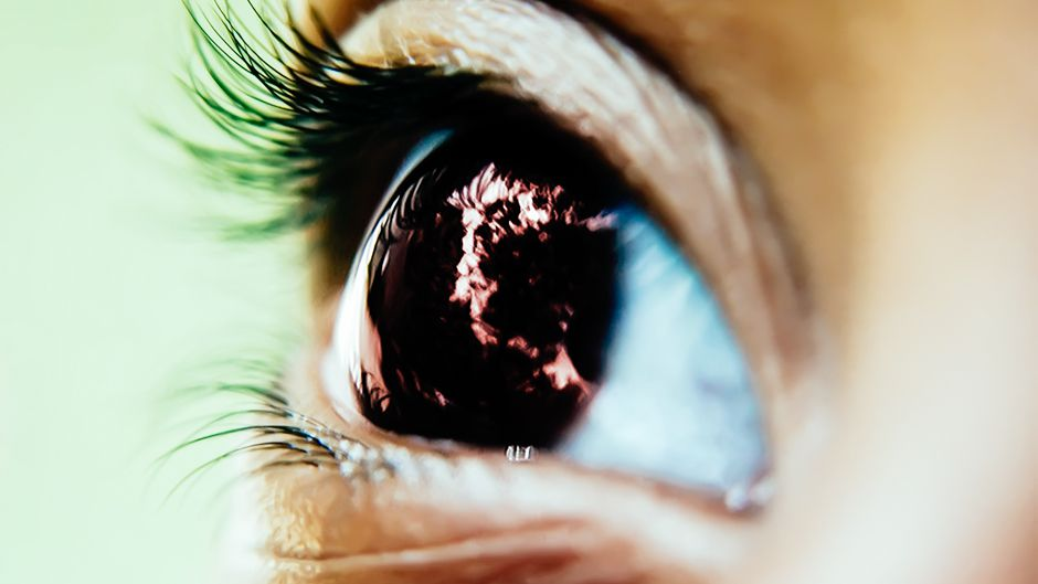 Eye Disease Sweeps Pacific Islands